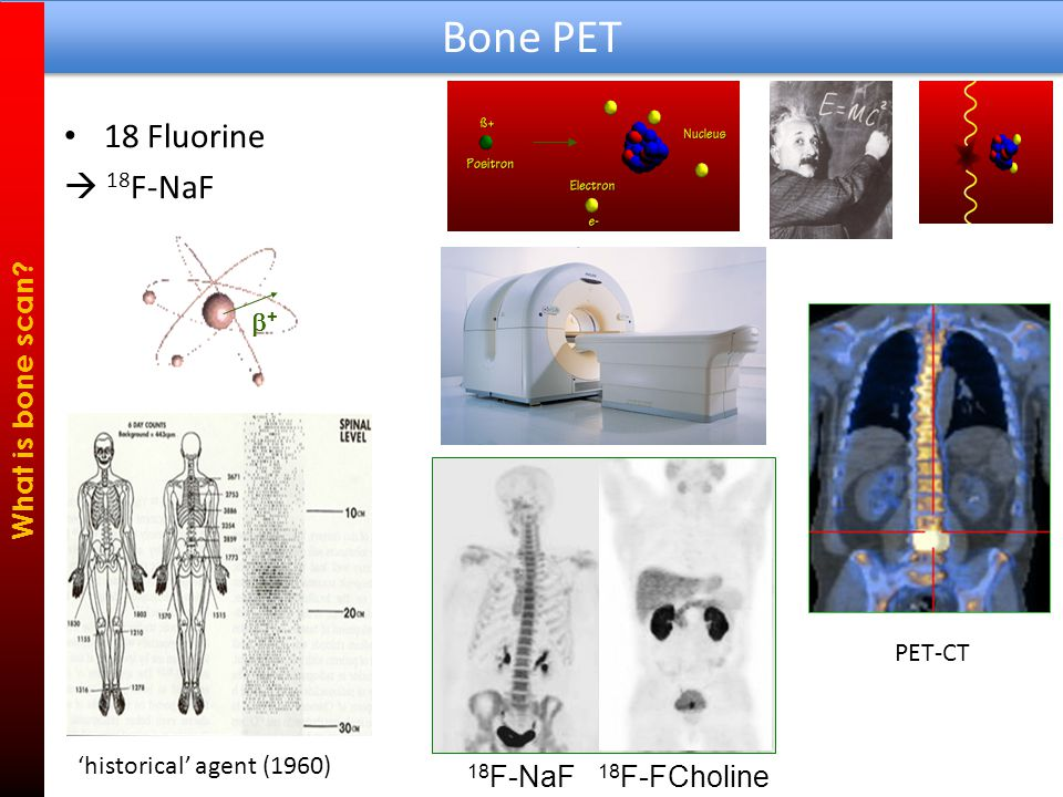 SPECT or PET .What is bone scan.