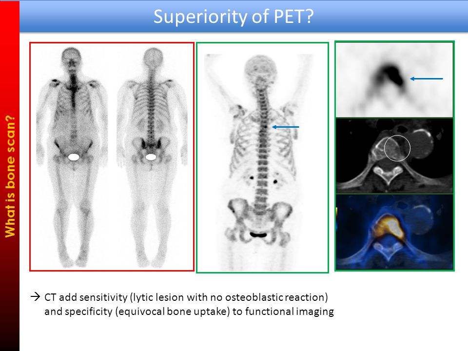 Superiority of PET. What is bone scan.