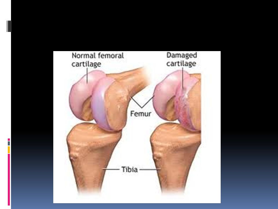  Months before you were born, your entire body was made out of cartilage  Gradually the cartiliage was broken down and became bone