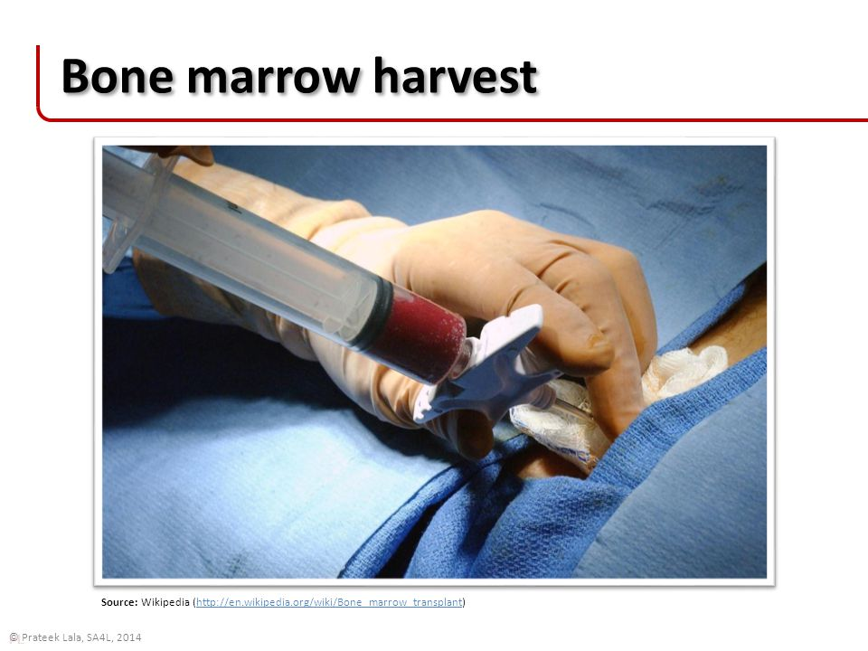 PL © Prateek Lala, SA4L, 2014 Bone marrow harvest Source: Wikipedia (http://en.wikipedia.org/wiki/Bone_marrow_transplant)