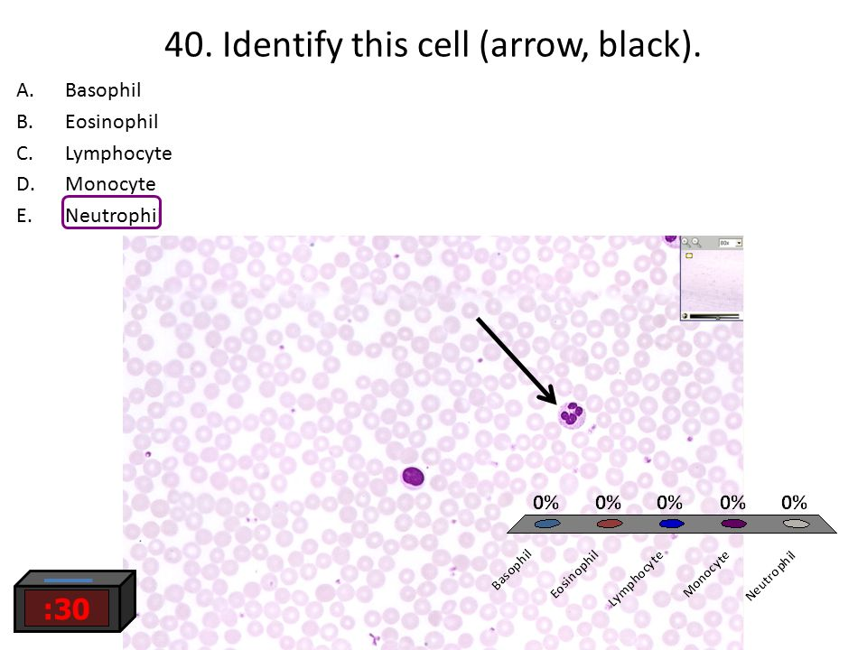 40. Identify this cell (arrow, black). :30 A.Basophil B.Eosinophil C.Lymphocyte D.Monocyte E.Neutrophil