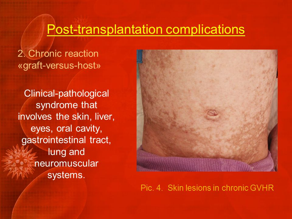 Post-transplantation complications Pic. 5 Aseptical skin lesions in chronic GVHD