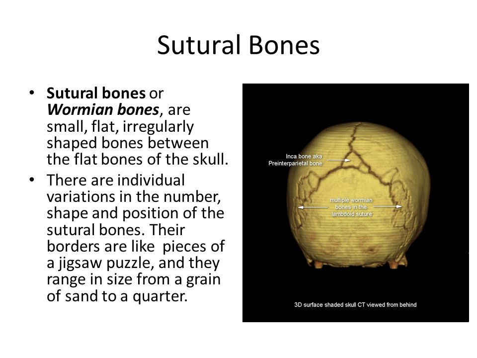 Sutural Bones Sutural bones or Wormian bones, are small, flat, irregularly shaped bones between the flat bones of the skull. There are individual vari