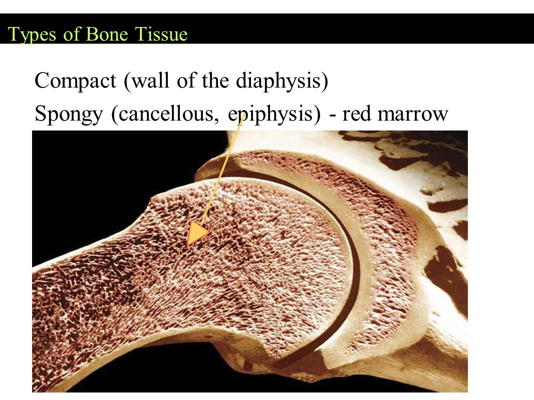 Types of Bone Tissue Compact (wall of the diaphysis) Spongy (cancellous, epiphysis) - red marrow