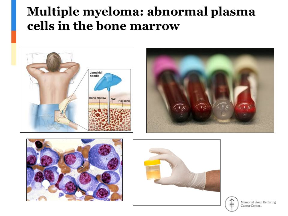 Multiple myeloma: abnormal plasma cells in the bone marrow