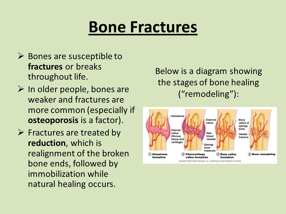 Bone Fractures  Bones are susceptible to fractures or breaks throughout life.