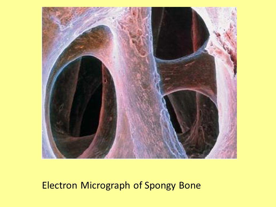 Electron Micrograph of Spongy Bone