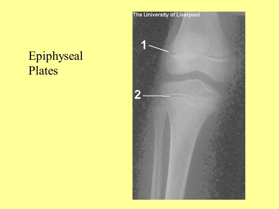 Epiphyseal Plates