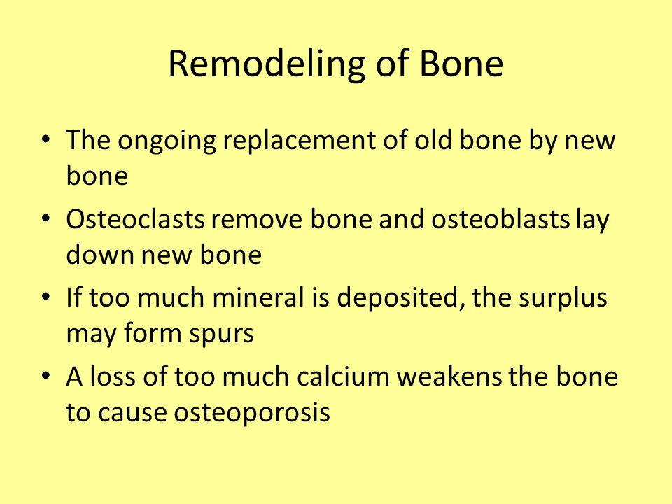Remodeling of Bone The ongoing replacement of old bone by new bone Osteoclasts remove bone and osteoblasts lay down new bone If too much mineral is deposited, the surplus may form spurs A loss of too much calcium weakens the bone to cause osteoporosis
