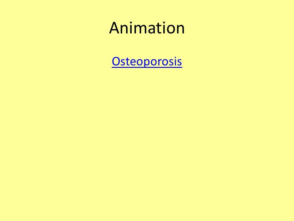 Animation Osteoporosis