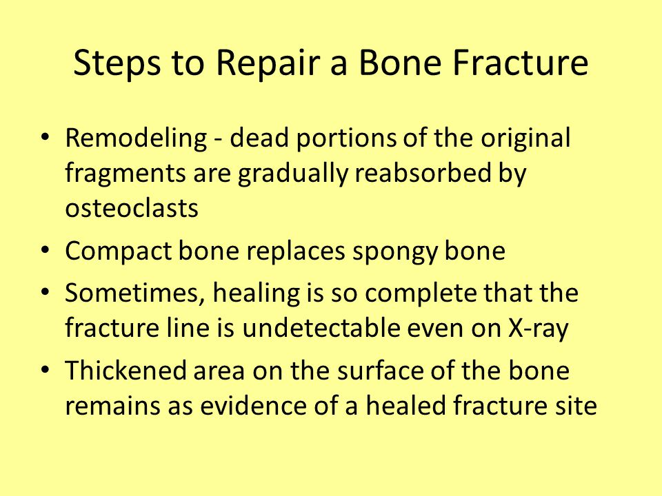Remodeling - dead portions of the original fragments are gradually reabsorbed by osteoclasts Compact bone replaces spongy bone Sometimes, healing is so complete that the fracture line is undetectable even on X-ray Thickened area on the surface of the bone remains as evidence of a healed fracture site Steps to Repair a Bone Fracture