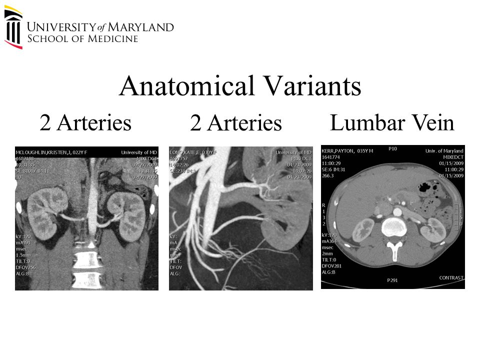 Anatomical Variants 2 Arteries Lumbar Vein