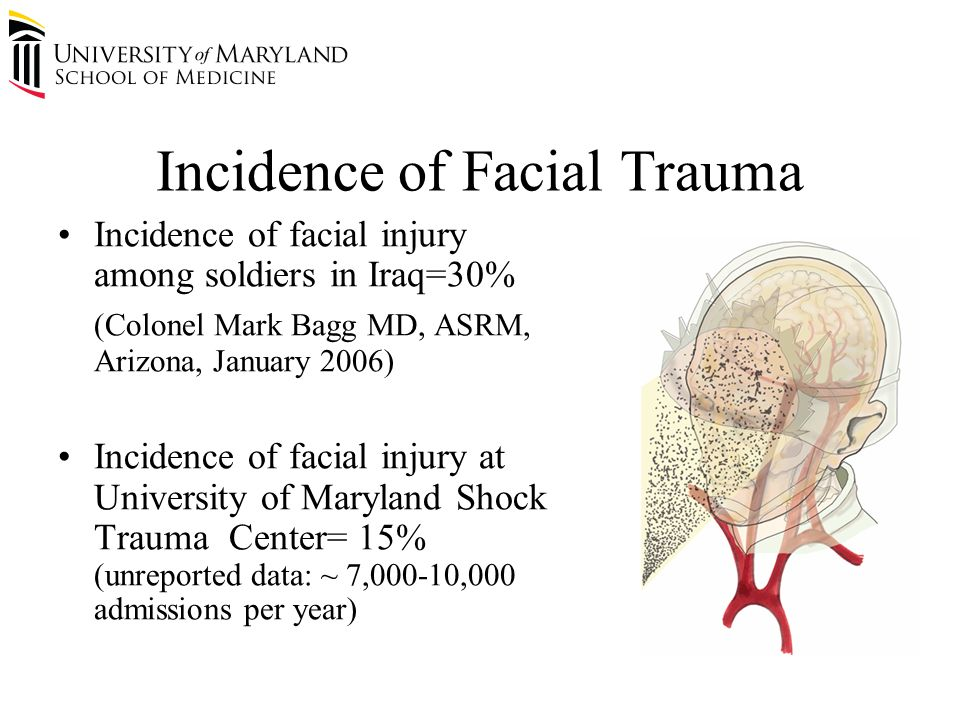 Incidence of Facial Trauma Incidence of facial injury among soldiers in Iraq=30% (Colonel Mark Bagg MD, ASRM, Arizona, January 2006) Incidence of facial injury at University of Maryland Shock Trauma Center= 15% (unreported data: ~ 7,000-10,000 admissions per year)