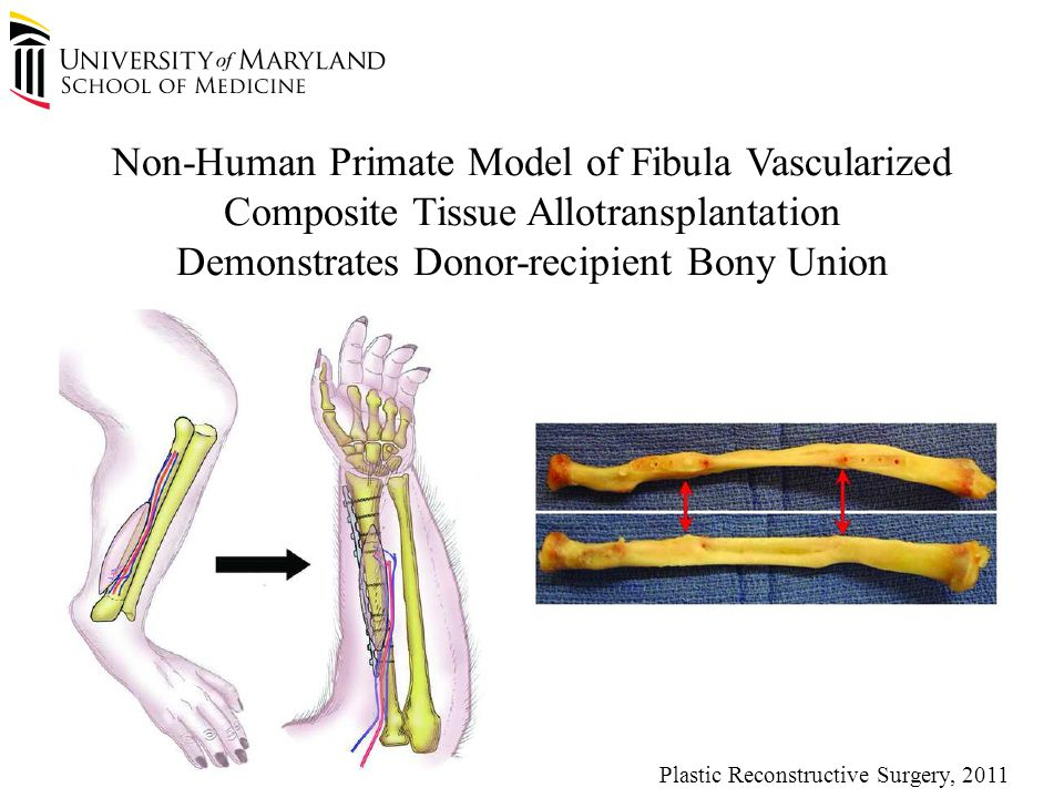 Plastic Reconstructive Surgery, 2011 Non-Human Primate Model of Fibula Vascularized Composite Tissue Allotransplantation Demonstrates Donor-recipient Bony Union