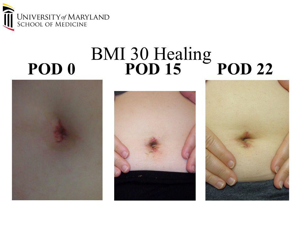 BMI 30 Healing POD 0POD 15POD 22