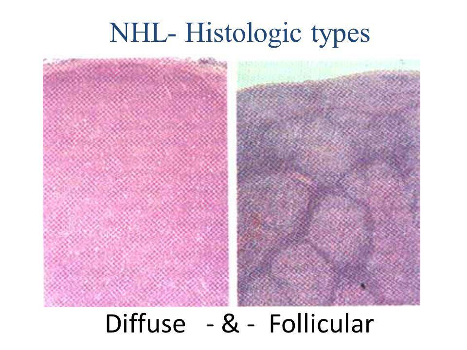 Diffuse - & - Follicular NHL- Histologic types