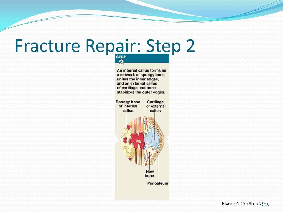 Fracture Repair: Step 2 Figure 6–15 (Step 2) 126