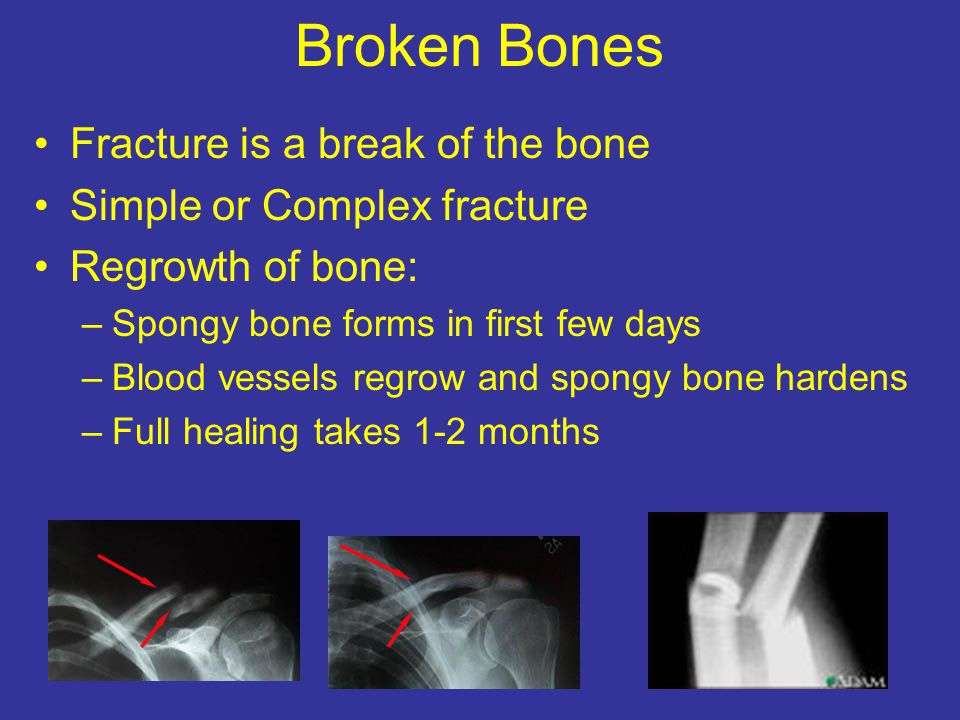 Broken Bones Fracture is a break of the bone Simple or Complex fracture Regrowth of bone: –Spongy bone forms in first few days –Blood vessels regrow a