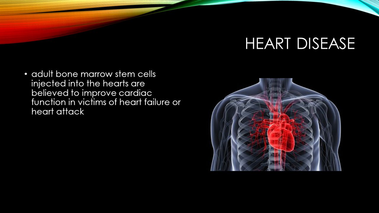 HEART DISEASE adult bone marrow stem cells injected into the hearts are believed to improve cardiac function in victims of heart failure or heart atta