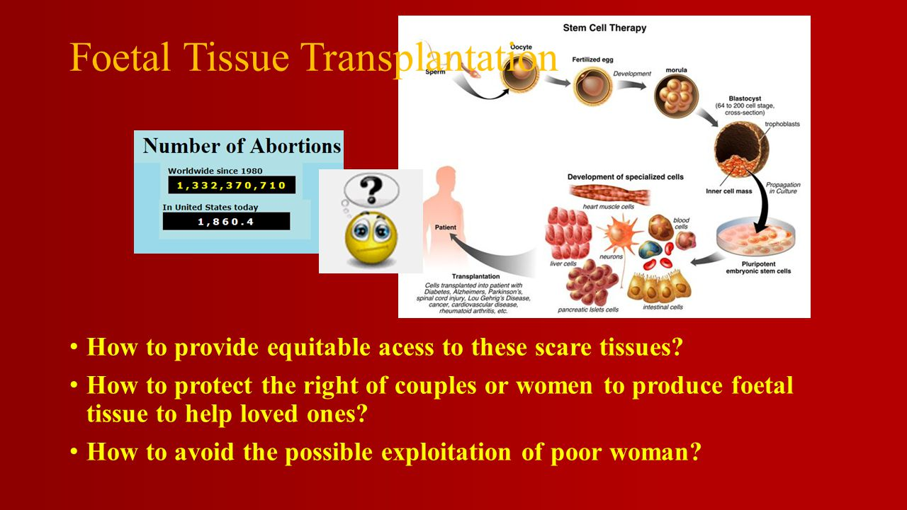 Foetal Tissue Transplantation How to provide equitable acess to these scare tissues.