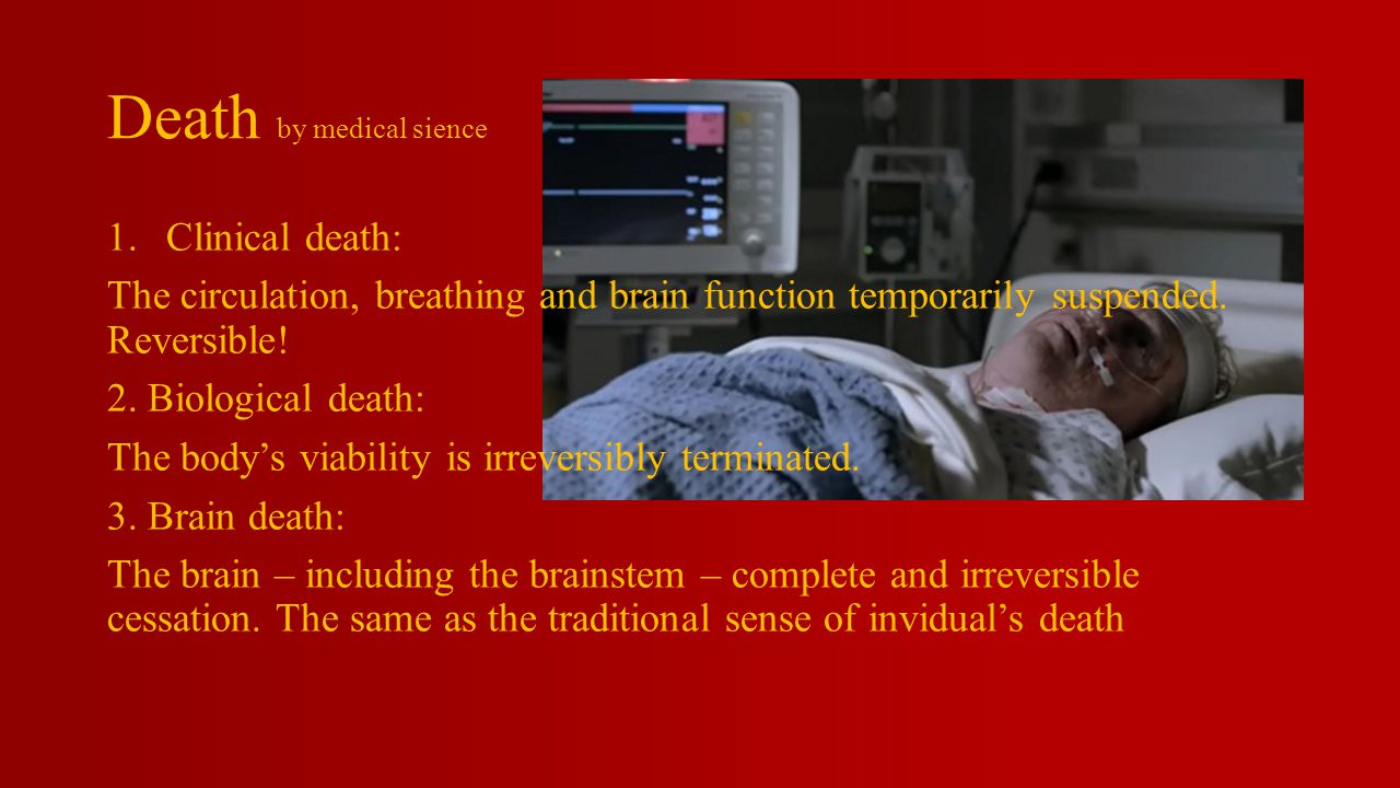 Death by medical sience 1.Clinical death: The circulation, breathing and brain function temporarily suspended.