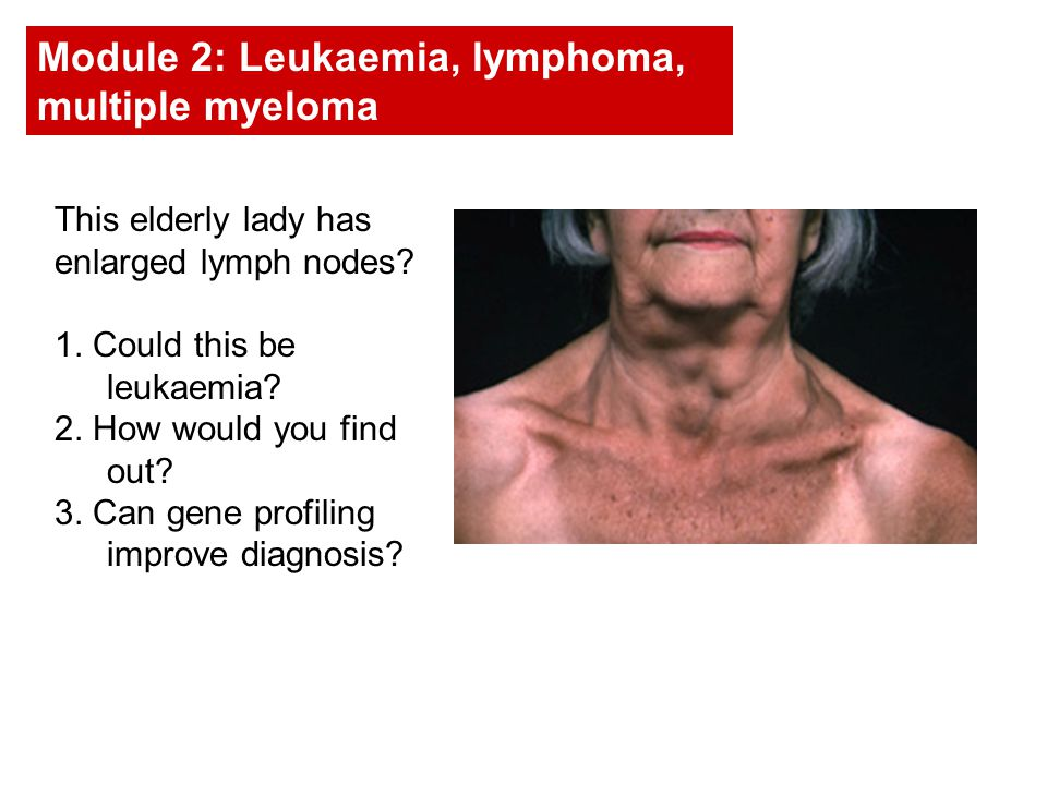 This elderly lady has enlarged lymph nodes. 1. Could this be leukaemia.