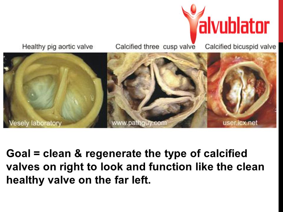 Goal = clean & regenerate the type of calcified valves on right to look and function like the clean healthy valve on the far left.