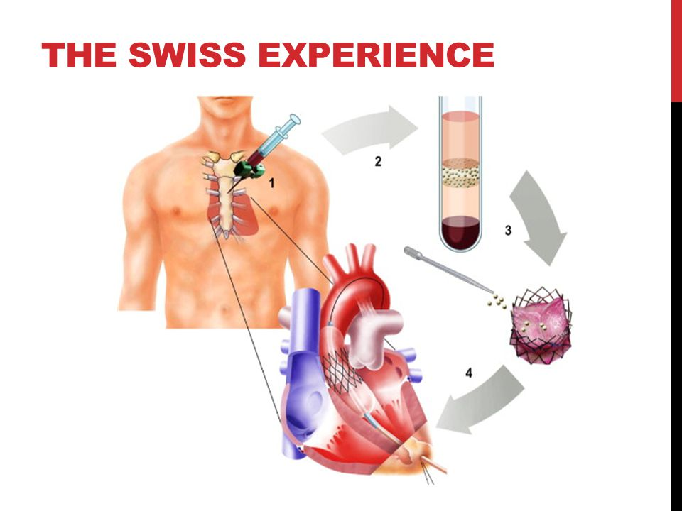 THE SWISS EXPERIENCE