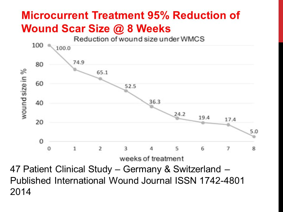 Microcurrent Treatment 95% Reduction of Wound Scar Size @ 8 Weeks 47 Patient Clinical Study – Germany & Switzerland – Published International Wound Journal ISSN 1742-4801 2014