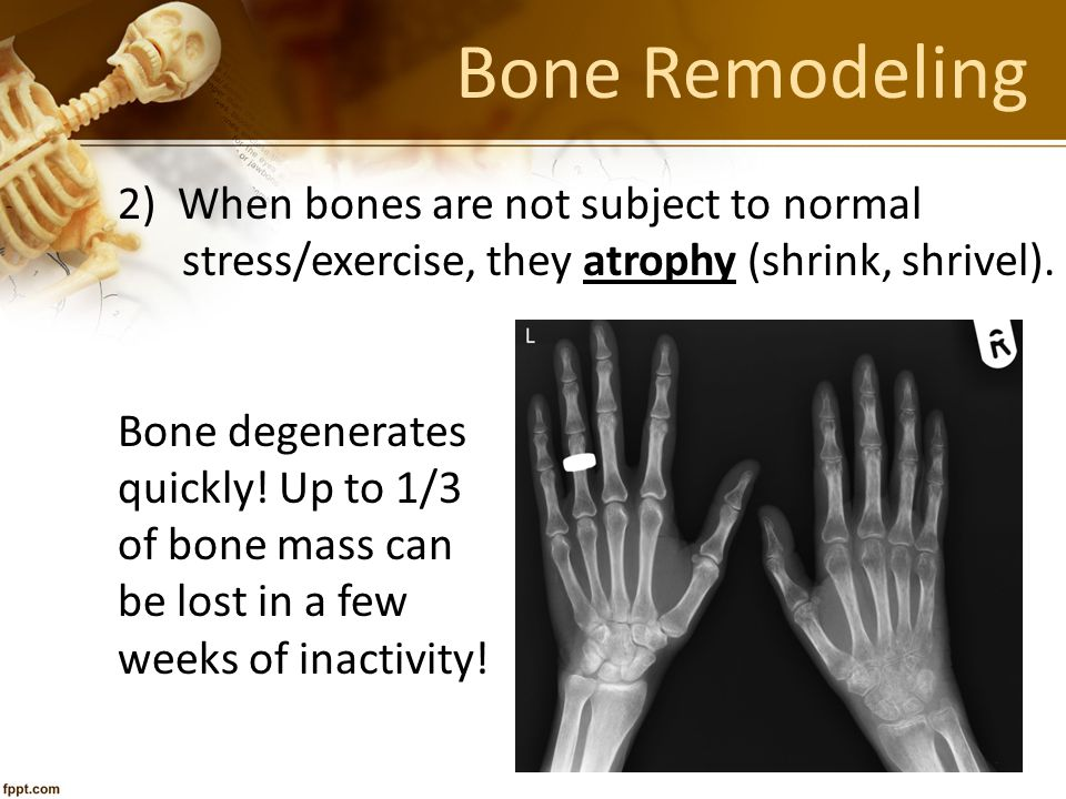 Bone Remodeling 2) When bones are not subject to normal stress/exercise, they atrophy (shrink, shrivel). Bone degenerates quickly! Up to 1/3 of bone m