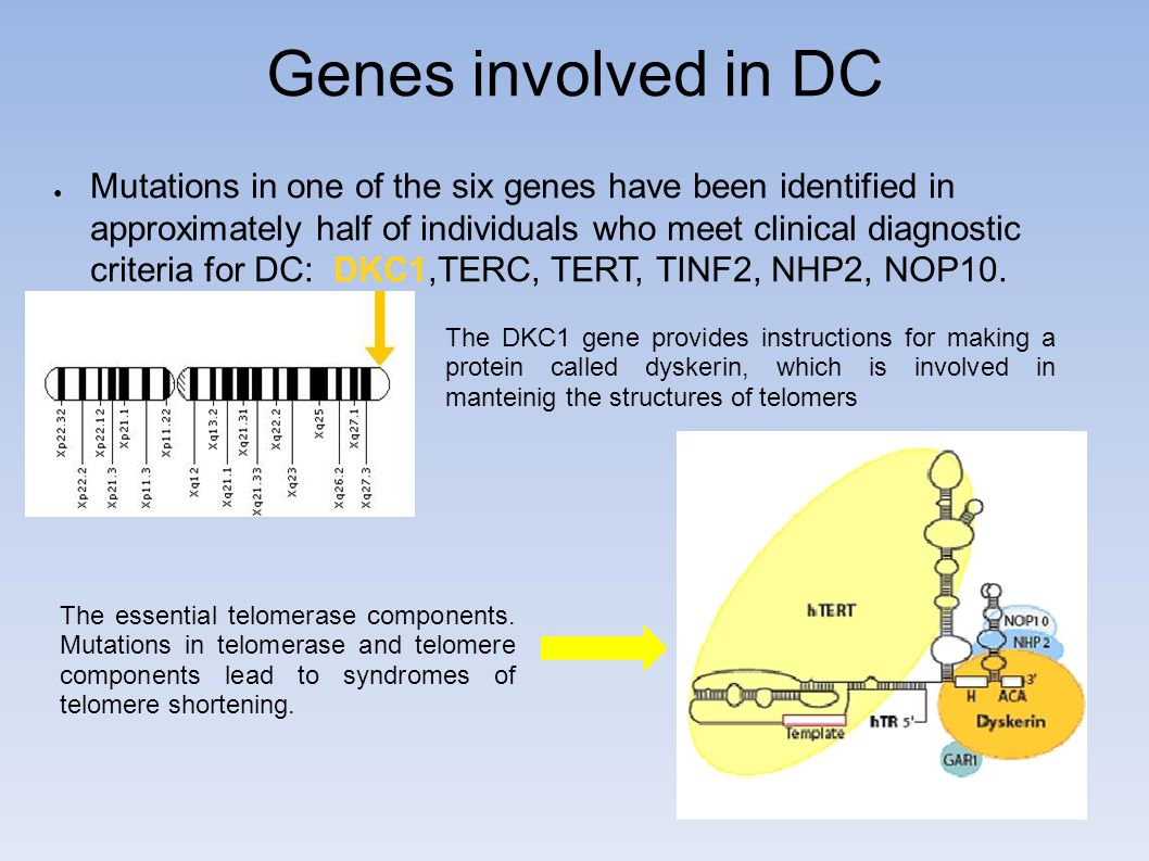 Genes involved in DC ● Mutations in one of the six genes have been identified in approximately half of individuals who meet clinical diagnostic criteria for DC: DKC1,TERC, TERT, TINF2, NHP2, NOP10.
