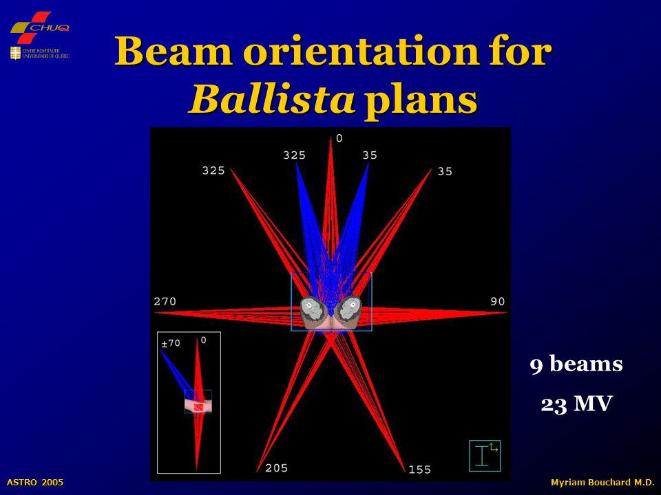ASTRO 2005 Myriam Bouchard M.D. Beam orientation for Ballista plans 9 beams 23 MV