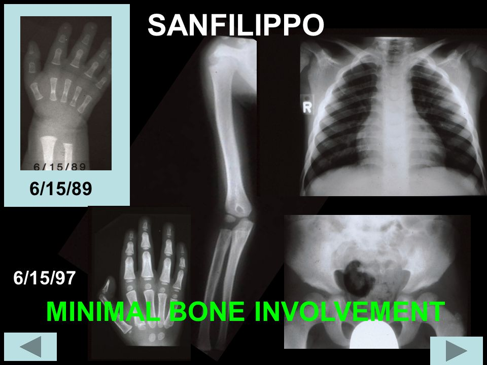 6/15/97 SANFILIPPO SEVERE CNS INVOLVEMENT WITH LITTLE SYSTEMIC INVOLVEMENT