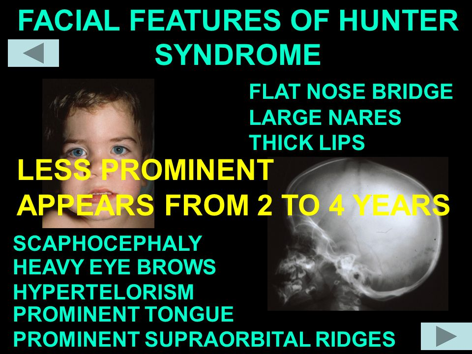 PROMINENT SUPRAORBITAL RIDGES FACIAL FEATURES OF HURLER SYNDROME APPEARS FROM 6 TO 24 MONTHS SCAPHOCEPHALY HEAVY EYE BROWS HYPERTELORISM FLAT NOSE BRI
