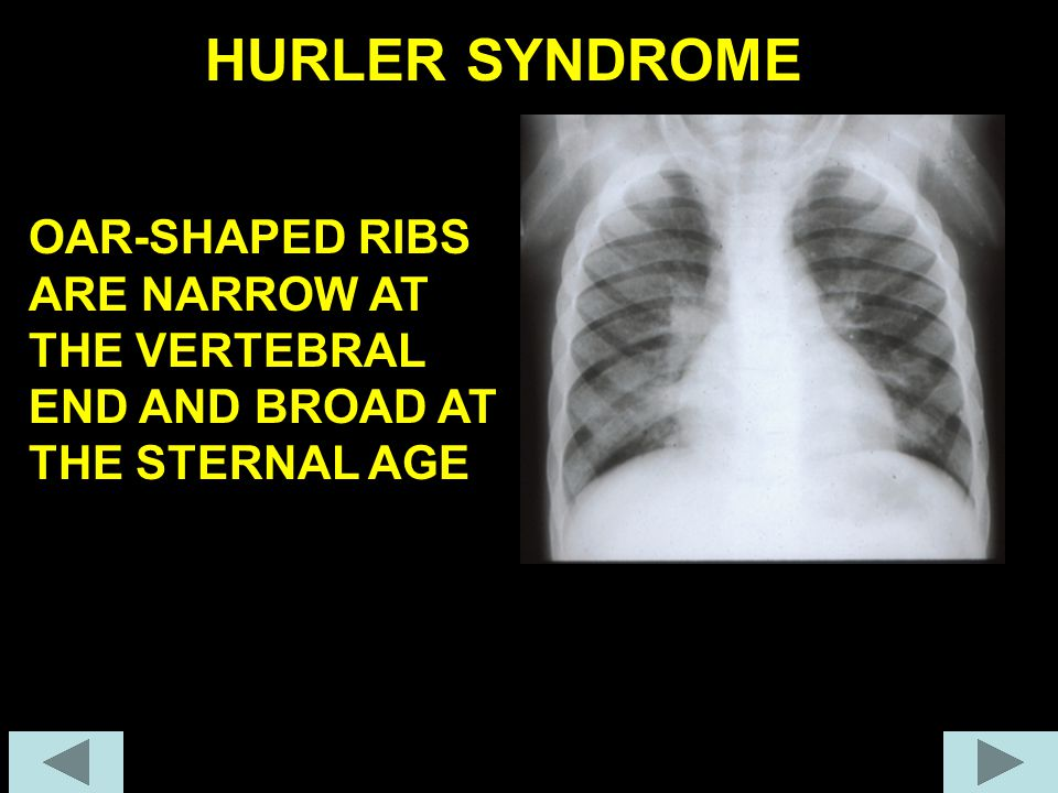 LONG BONES: BROAD AND SHORT HURLER SYNDROME BROAD, BULLET LIKE PHALANGES HYPOBLASTIC ILIA & FEMORAL HEAD ANTERIOR HYPOPLASIA OF THE VERTEBRAS AND KYPH