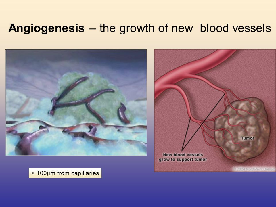 Angiogenesis – the growth of new blood vessels < 100  m from capillaries