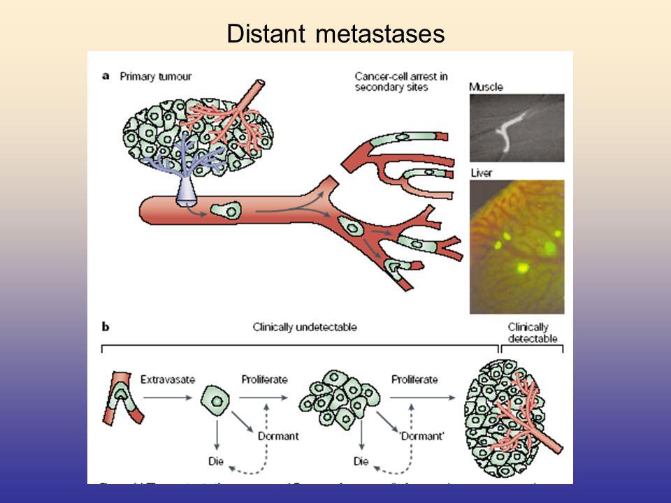 Distant metastases