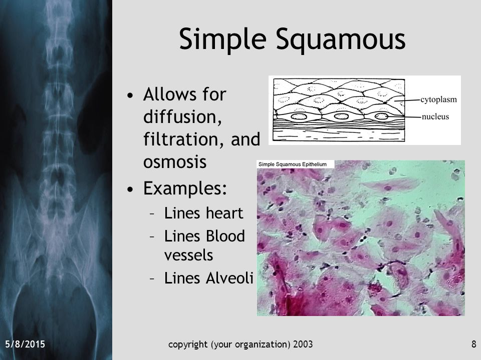 5/8/2015copyright (your organization) 20038 Simple Squamous Allows for diffusion, filtration, and osmosis Examples: –Lines heart –Lines Blood vessels –Lines Alveoli