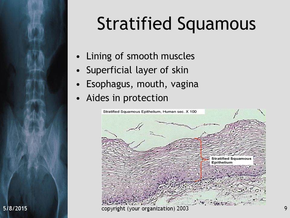 5/8/2015copyright (your organization) 20039 Stratified Squamous Lining of smooth muscles Superficial layer of skin Esophagus, mouth, vagina Aides in protection