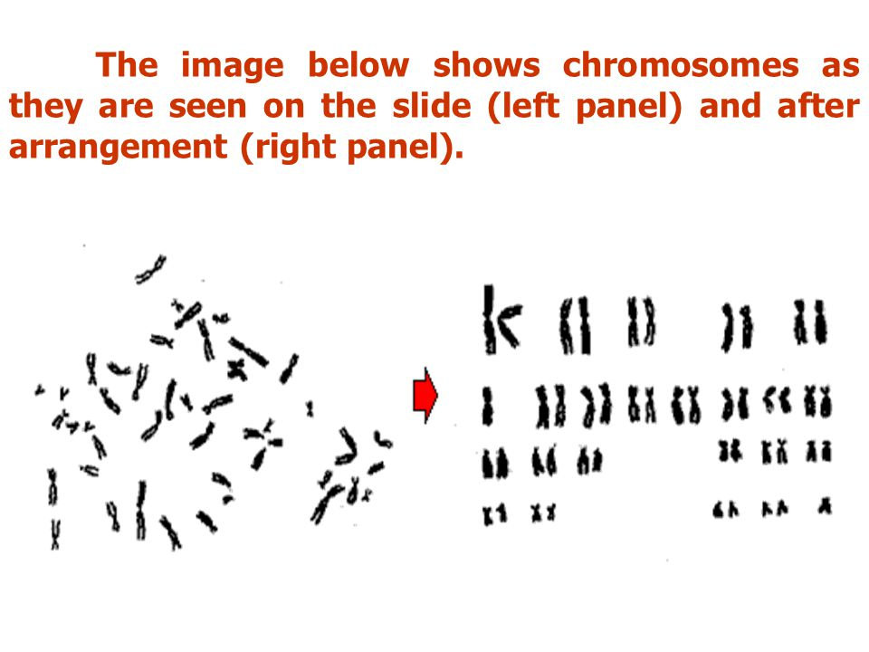 The image below shows chromosomes as they are seen on the slide (left panel) and after arrangement (right panel).