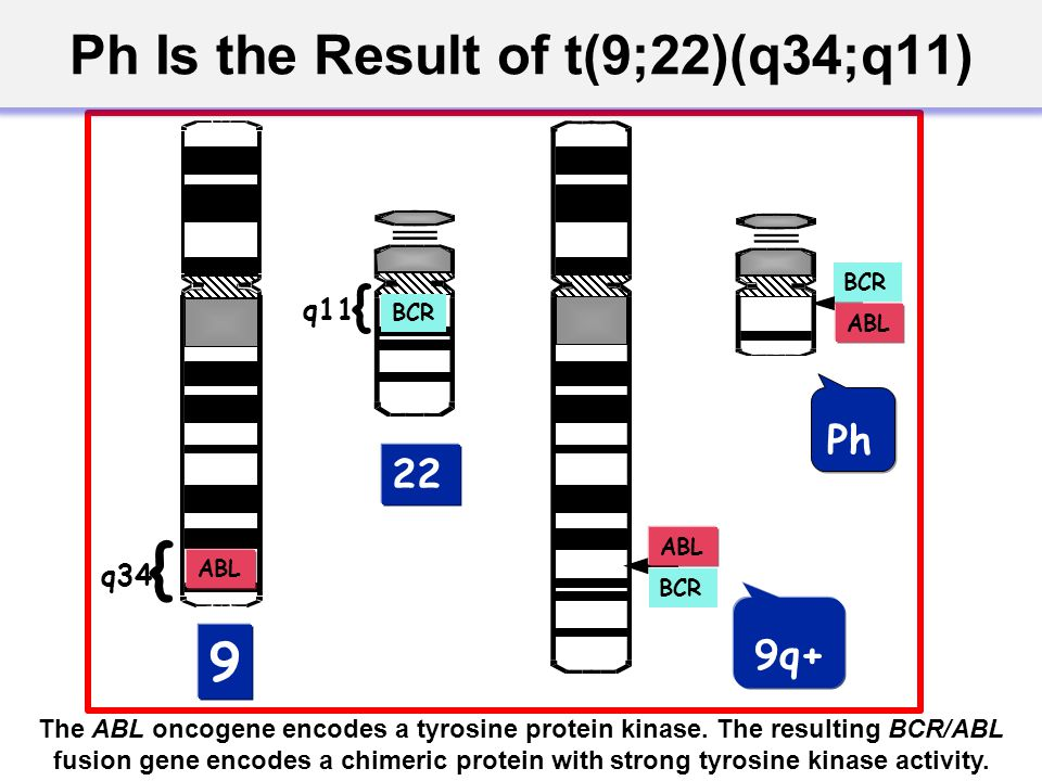 BCR ABL BCR ABL BCR { q11 Ph 9q+ 22 9 { q34 ABL Ph Is the Result of t(9;22)(q34;q11) The ABL oncogene encodes a tyrosine protein kinase. The resulting