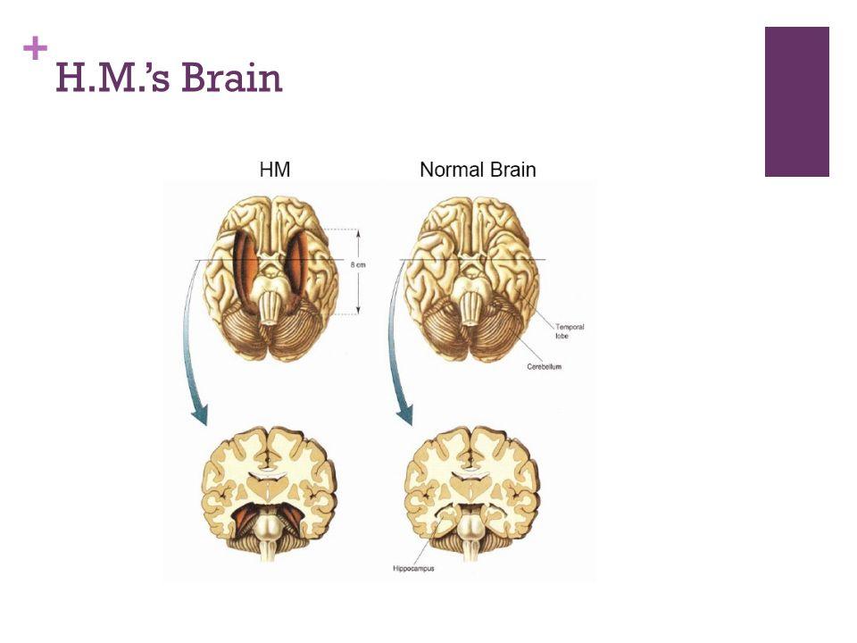 + H.M.'s Brain