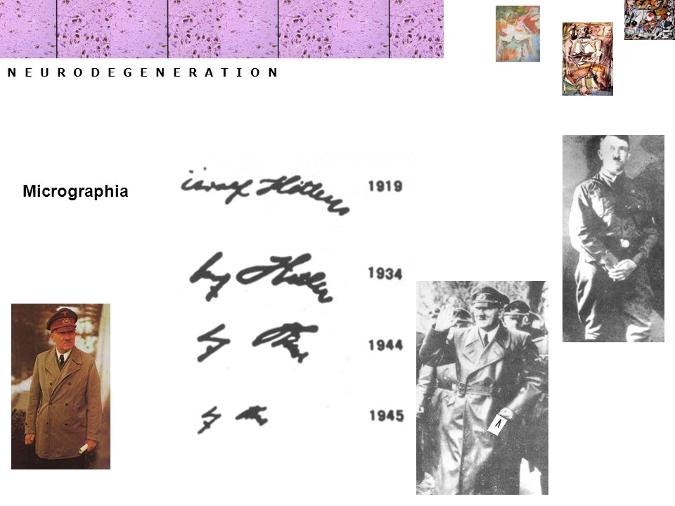 N E U R O D E G E N E R A T I O N Micrographia