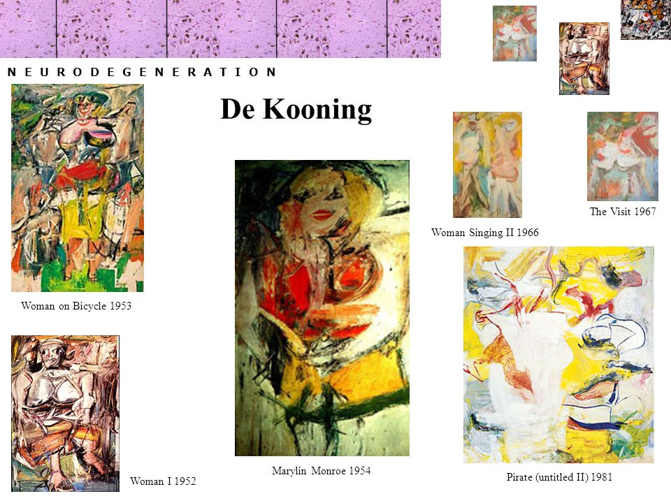 N E U R O D E G E N E R A T I O N Woman I 1952 Marylin Monroe 1954 Woman on Bicycle 1953 Woman Singing II 1966 The Visit 1967 Pirate (untitled II) 1981 De Kooning