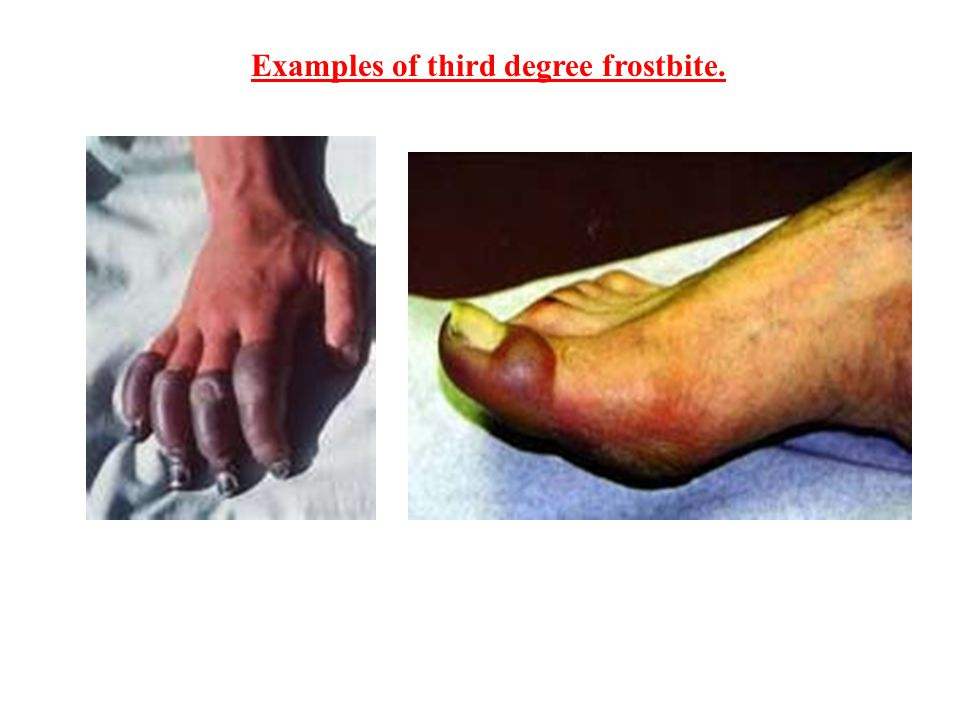 Examples of third degree frostbite.