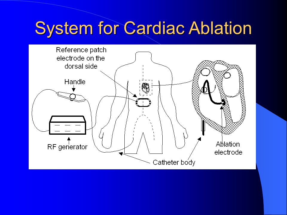 System for Cardiac Ablation
