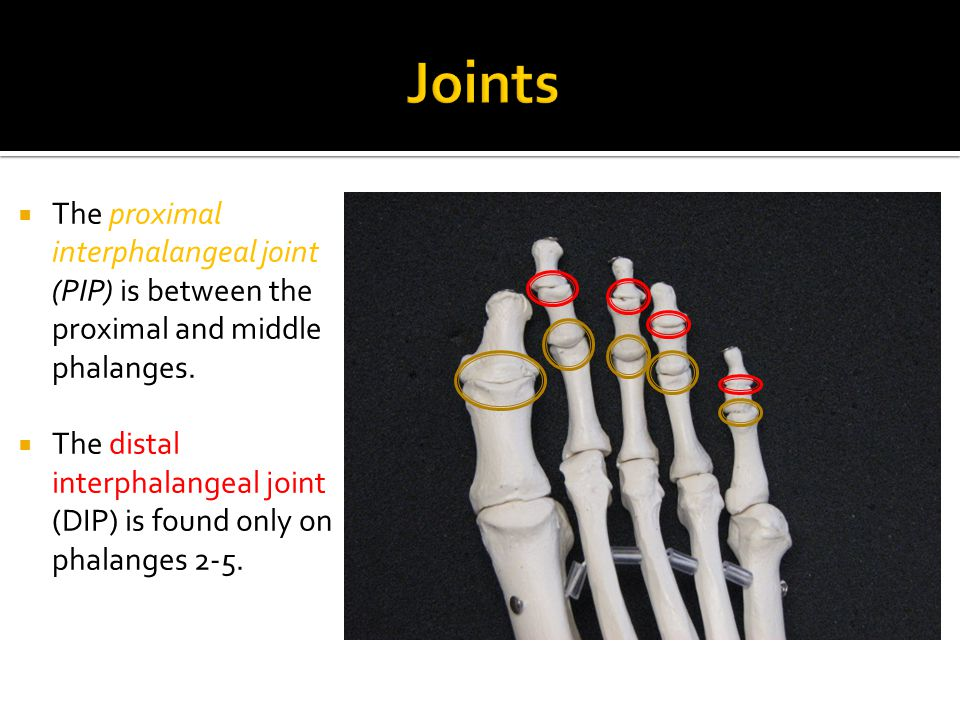  The proximal interphalangeal joint (PIP) is between the proximal and middle phalanges.