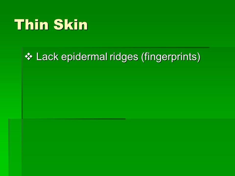 Thin Skin  Lack epidermal ridges (fingerprints)