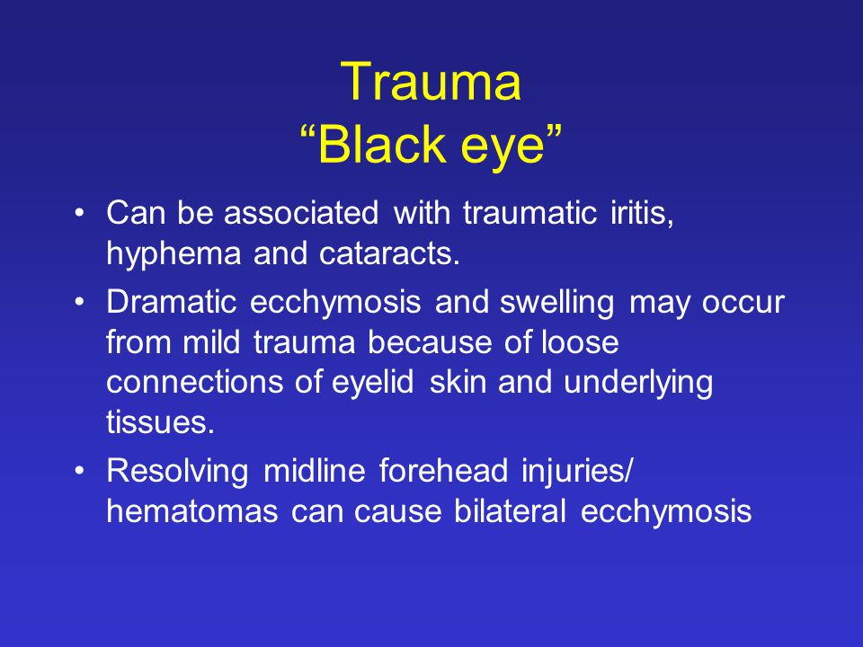Trauma Black eye Can be associated with traumatic iritis, hyphema and cataracts.