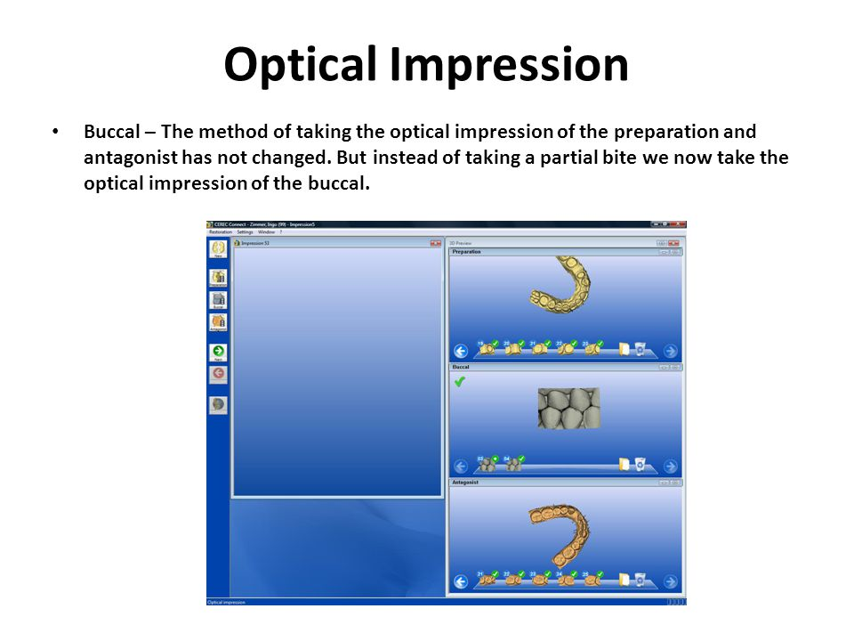 Optical Impression Buccal – The method of taking the optical impression of the preparation and antagonist has not changed.